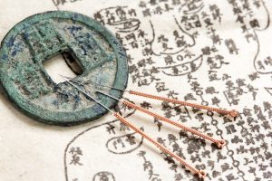 First Time Acupuncture Treatment: What to Expect
